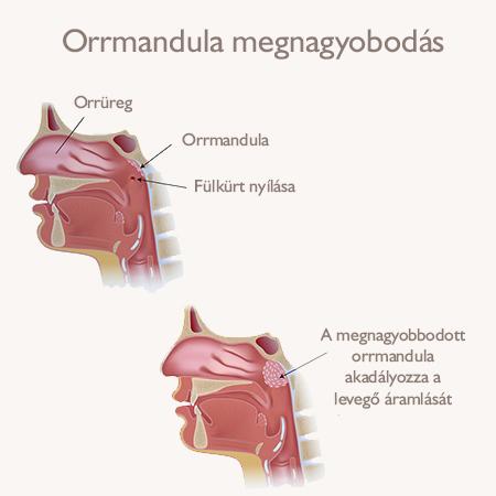 mandula ízületi fájdalom eltávolítása