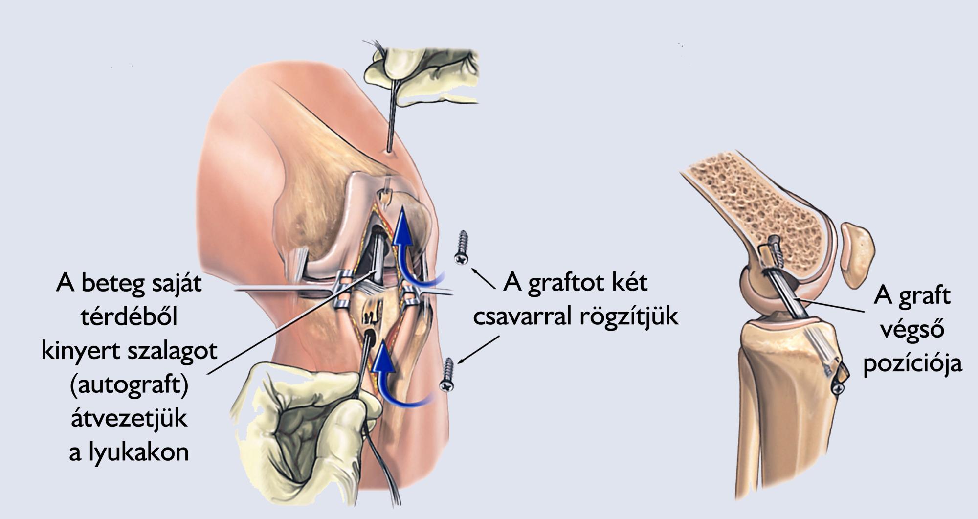 ACL műtét - A graft átvezetése és rögzítés