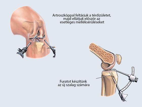 A térd artroszkópos feltárása LCA műtét előtt