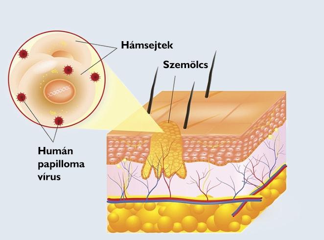 váll lipoma kezelés