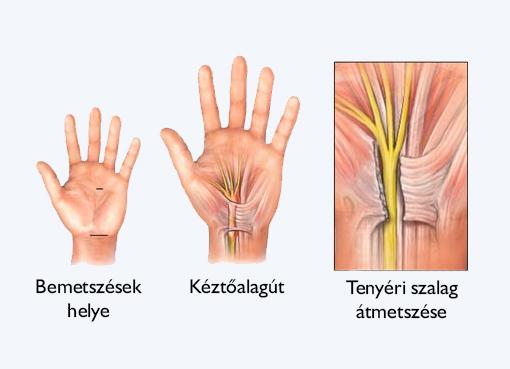 csukló műtét után)