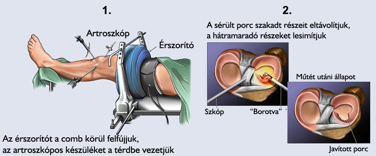 A meniscus műtét menete