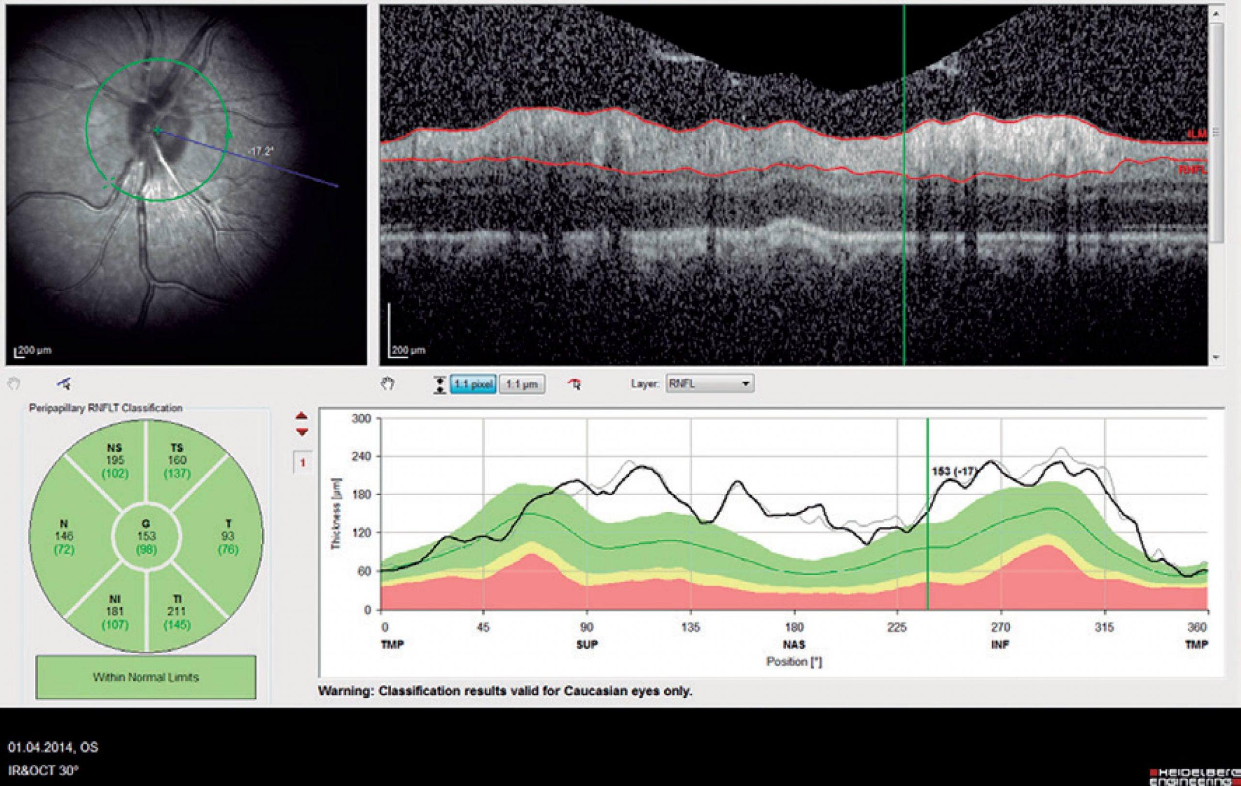 koherencia tomográfia a szemészetben myopia, veleszületett vagy szerzett