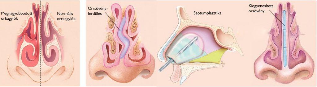 Orrsövényműtét, orrsövényplasztika
