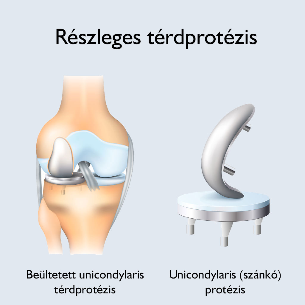 az artrózis kezelés típusai