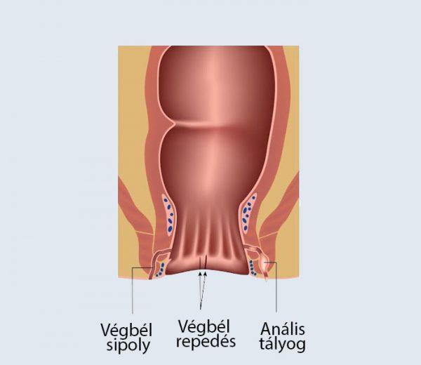 A prosztatitis burgonyafuice kezelése