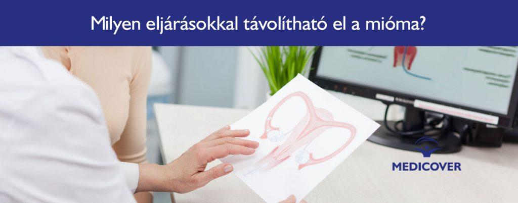 mioma-eltavolitas-laparotomia-laparoszkopia-vagy-hiszteroszkopia