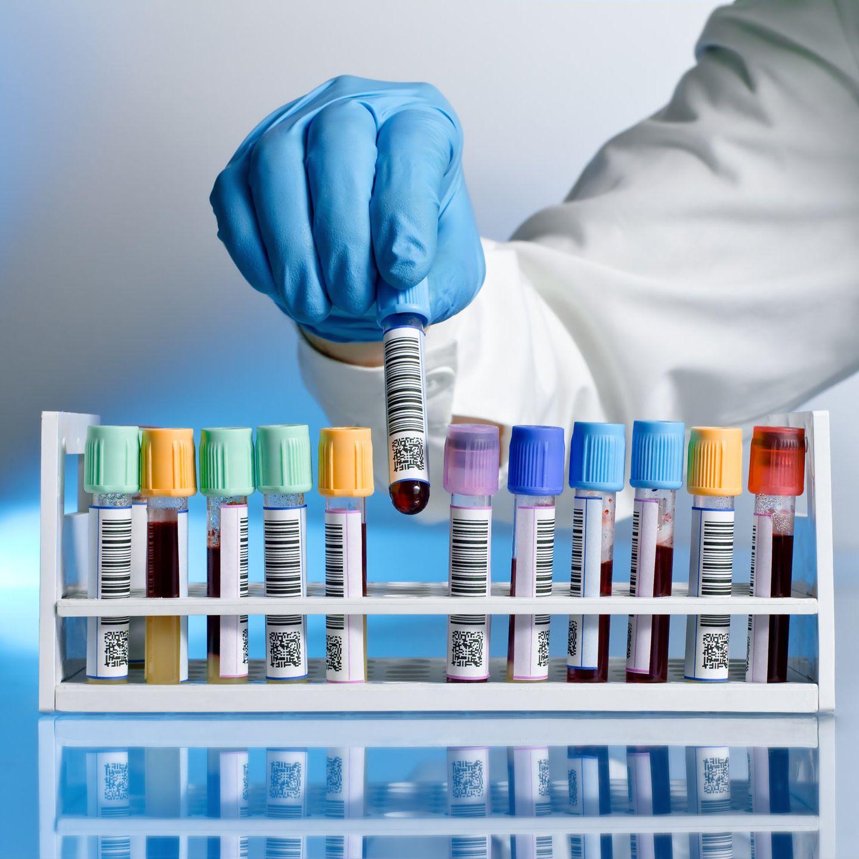 Infekciós-szerológia-laborvizsgálat