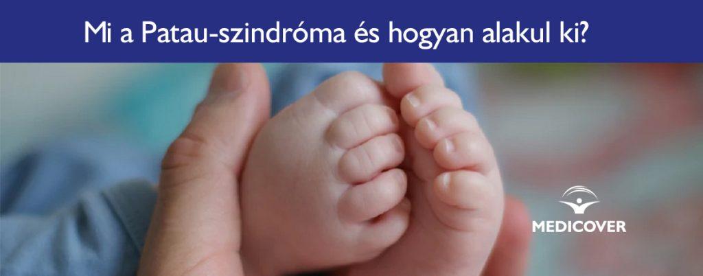 Visszértágulat - a lábak varikozása okai, tünetei és kezelése - Nyáktömlőgyulladás May