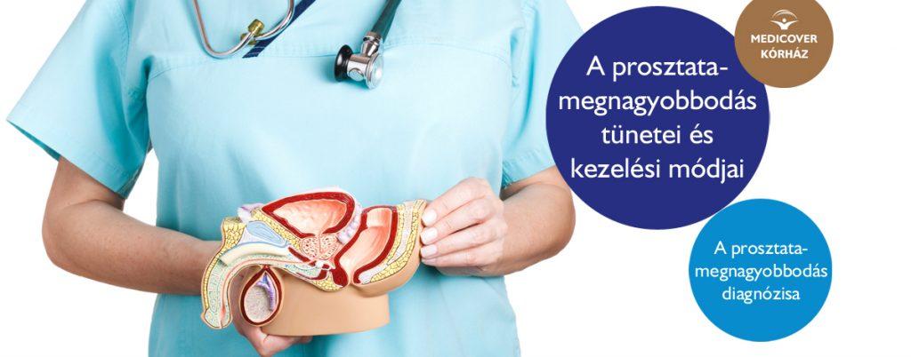 Proctológus kezelői prosztatitis