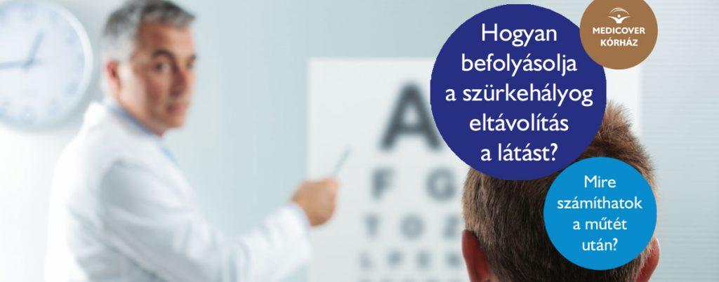 látás műtét után)