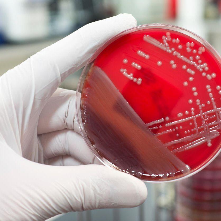 Mikrobiológiai-laborvizsgálatok
