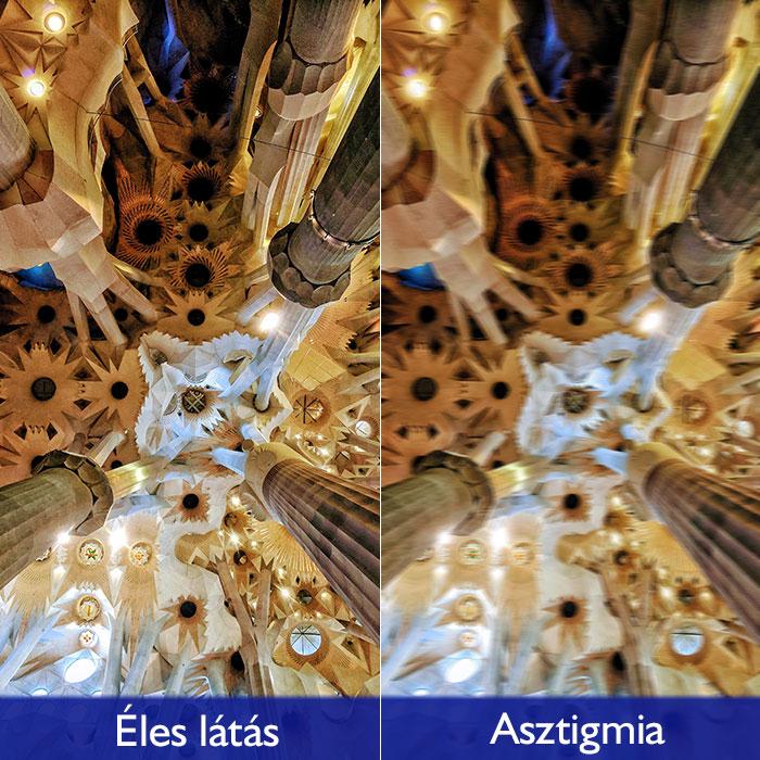 nem műtéti látás antioxidánsok a látás javítására
