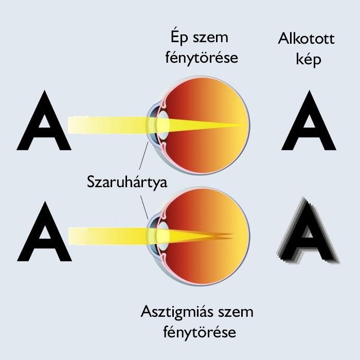 Pillantás látáskezelés - Hyperopia műtét mellett és ellen