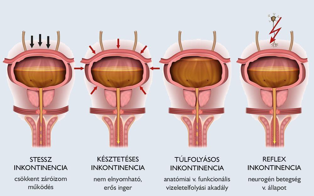 inkontinencia műtét pécs