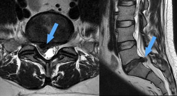 Műtét előtti ágyéki porckorongsérv