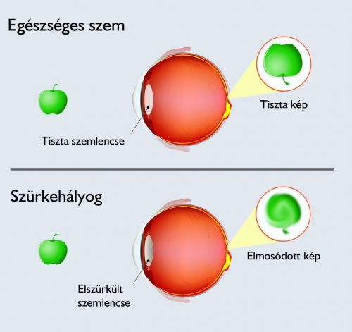 szurkehalyog-szembetegseg-cataracta