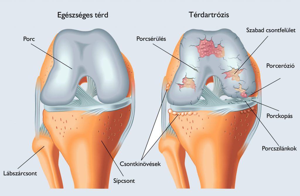 térdízületi artrózis hialuronsav kezelés áttekintés