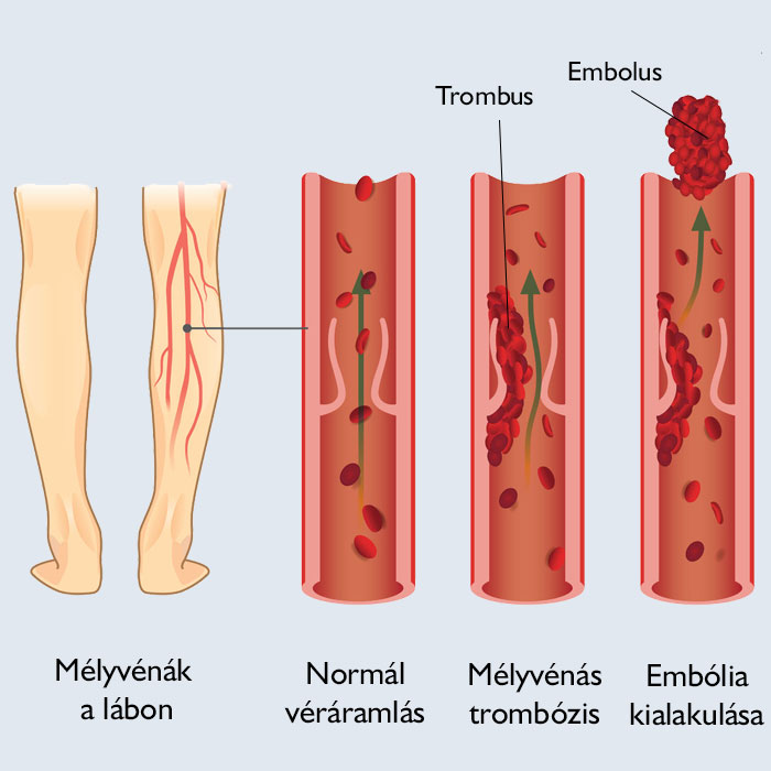 vörös foltok a lábon, trombózis