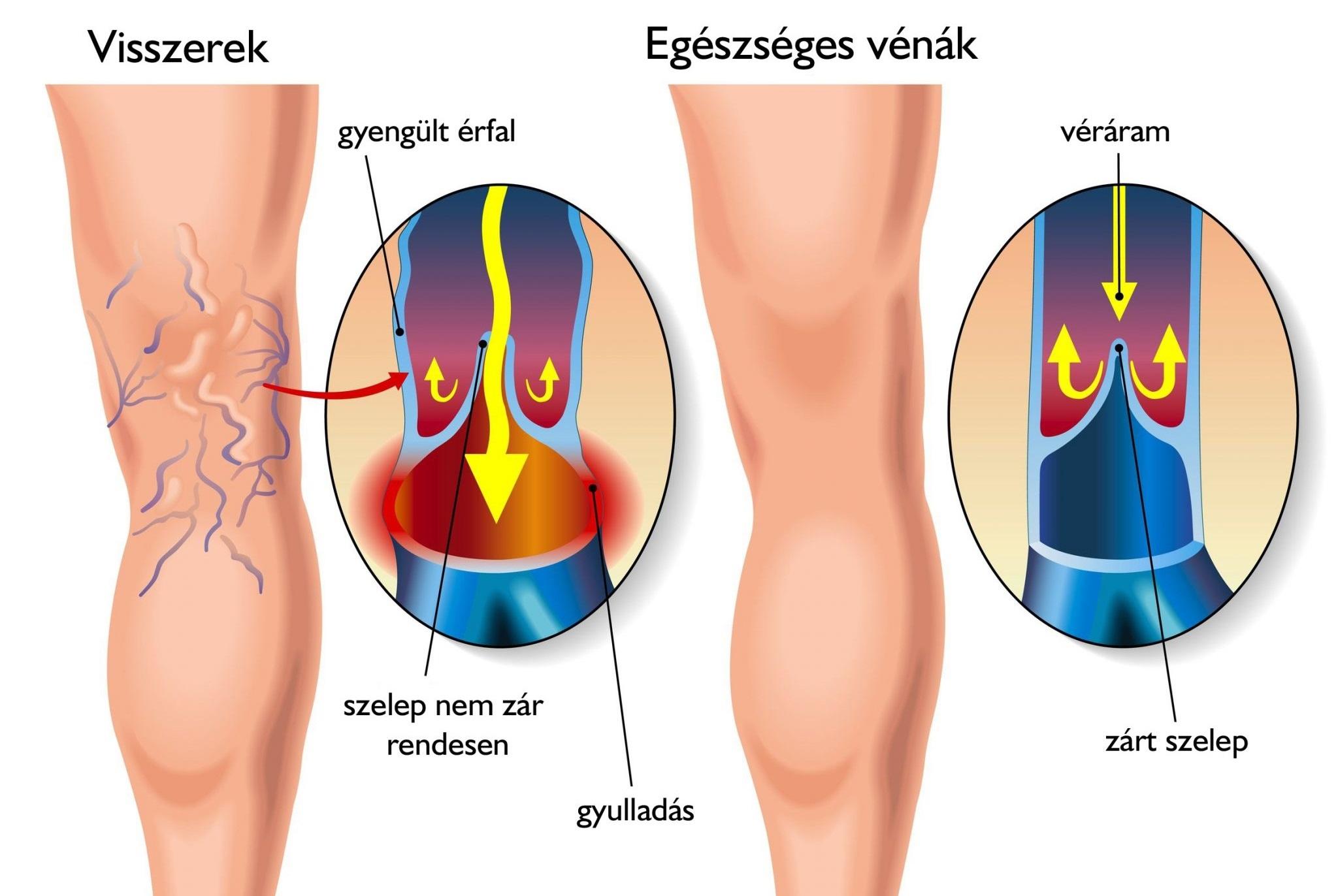 visszér a lábakon kezelés és megelőzés