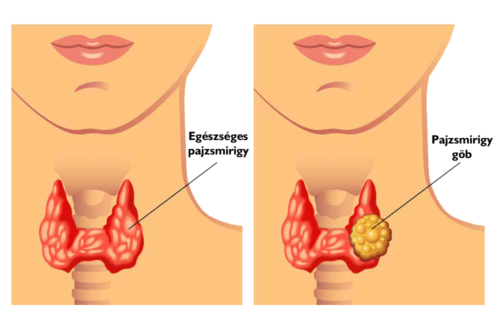 göb rák tünetei