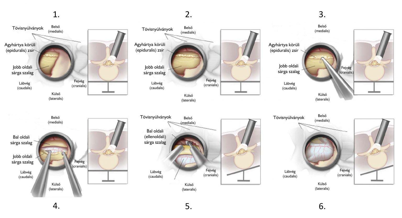 súlycsökkenés és ágyéki gerinc szűkület)