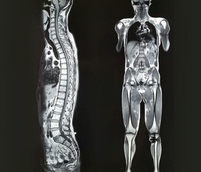 teljes-test-mr-vizsgalat-medicover-diagnosztika