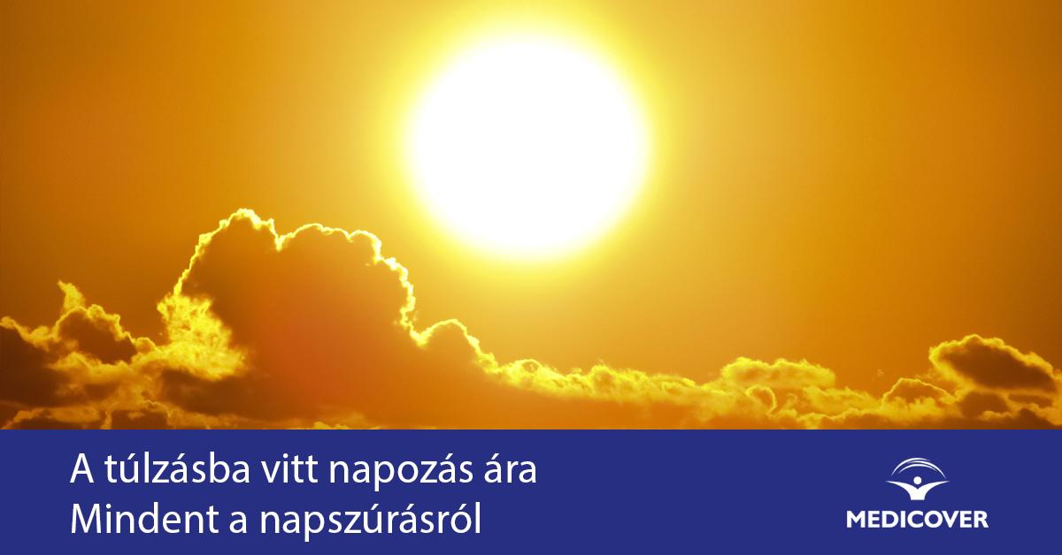 napozas-napszuras